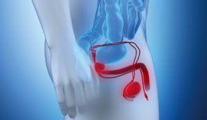 leczenie zaburzen erekcji