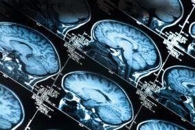chirurgia podstawy czaszki