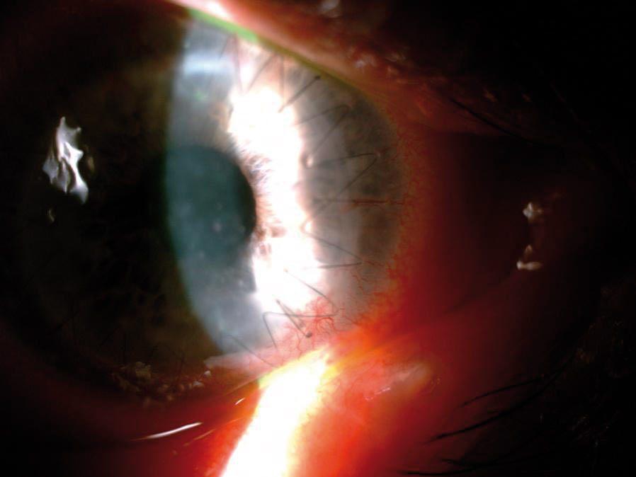 Zdjęcie 3. Choroba przeszczepu rogówki upacjenta po przeszczepieniu zpowodu perforacji wprzebiegu owrzodzenia rogówki. Widoczne przymglenie przeszczepu, jego obrzęk iliczne osady na śródbłonku rogówki. (materiał SPKSO)