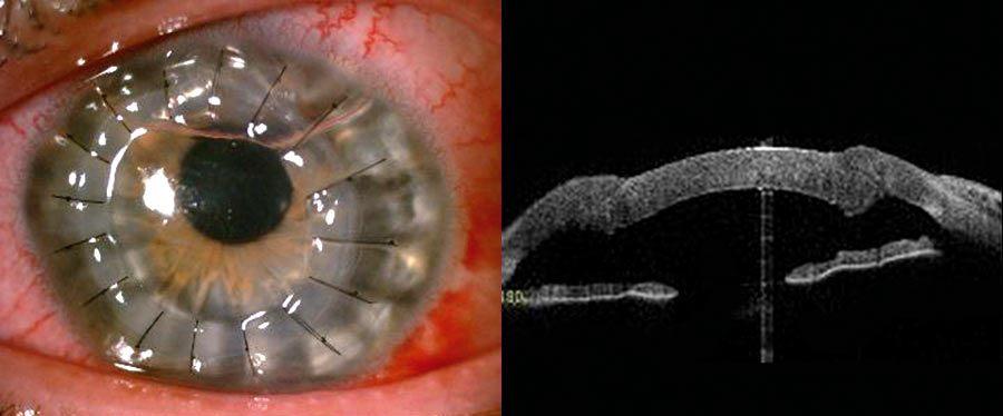 Ryc. 3. Stan po przeszczepieniu warstwowym głębokim przednim  (1. doba po operacji).
