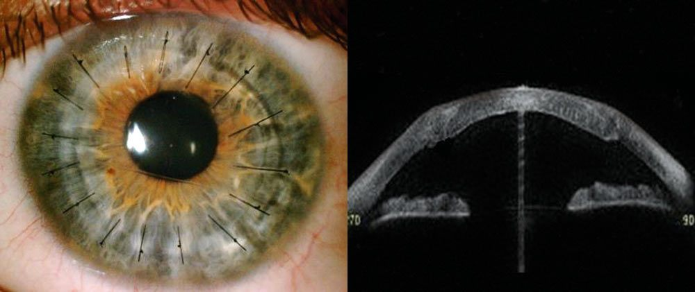 Ryc. 4. Stan po przeszczepieniu warstwowym głębokim przednim  (3 miesiące po operacji).