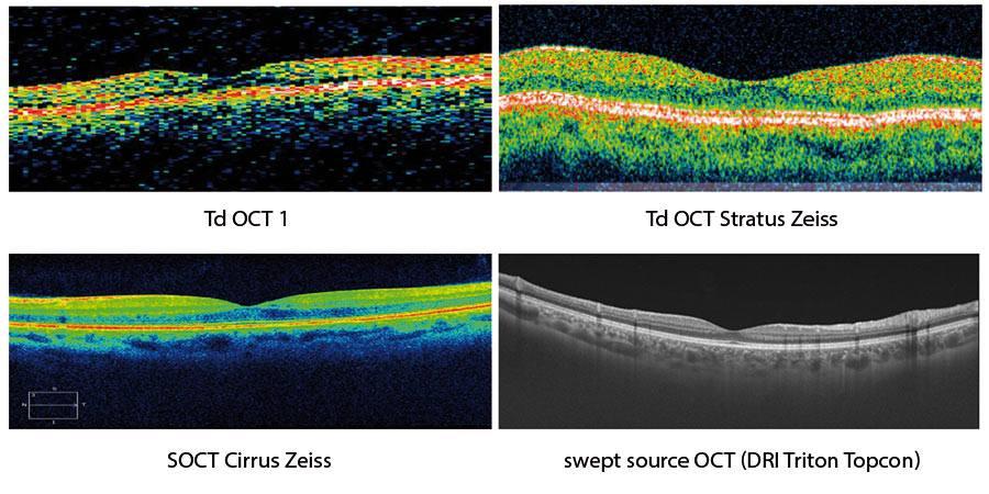 Ryc 1. Ewolucja wobrazowaniu OCT - przykłady tomogramów prawidłowej siatkówki wdołeczku uzyskanych za pomocą OCT zdomeną czasową (Td = time domain) – OCT 1 iOCT 3, spektralnej OCT oraz OCT najnowszej generacji – technologia swept source DRI Triton firmy Topcon.