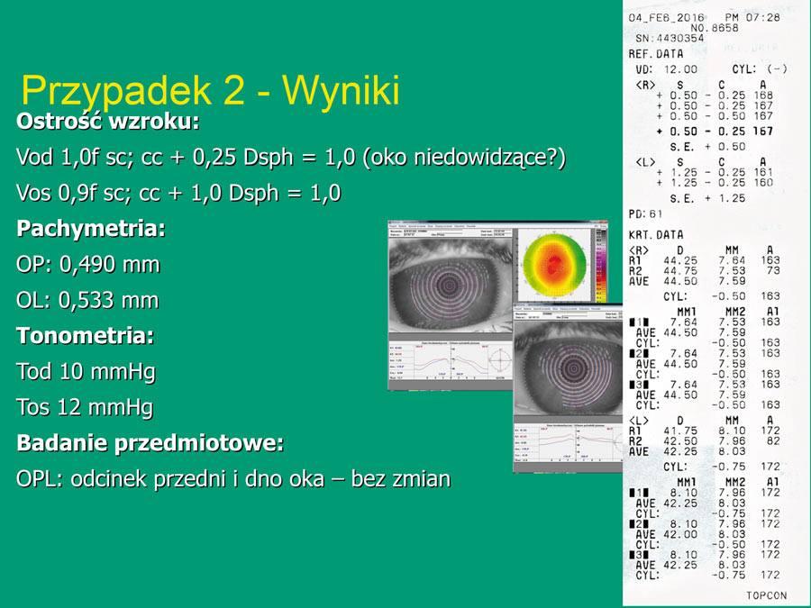 chirurgia-refrakcyjna-14