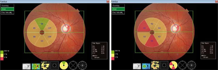 Ryc. 11. Analiza grubości GCC zRNFL-po lewej oraz bez RNFL – po prawej wplamce oka prawego u18-letniego pacjenta zposzerzonym zagłębieniem tarczy nerwu wzrokowego, prawidłową grubością RNFL wokół tarczy nerwu wzrokowego oraz dodatnim wywiadem rodzinnym wkierunku jaskry – wynik graniczny (kolor żółty) ipatologiczny (kolor czerwony).