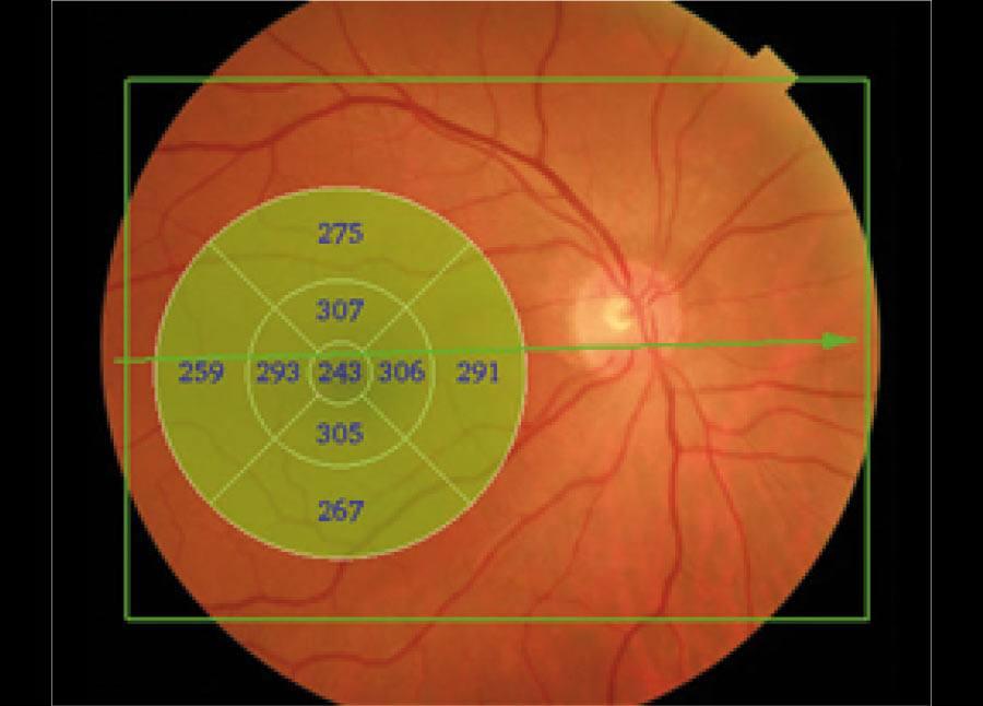 Ryc. 4. Zielona ramka to obszar 9 mm x 12 mm, który może zostać zobrazowany podczas jednego badania.