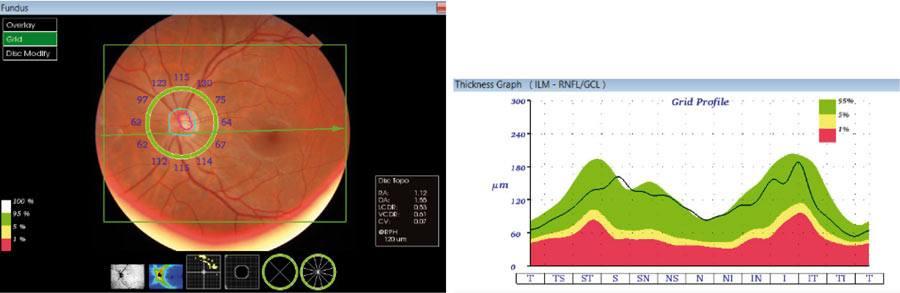 """Ryc. 9. Analiza grubości warstwy włóknien nerwowych (RNFL) wokół tarczy nerwu wzrokowego zodniesieniem do bazy normatywnej – wynik badania prawidłowy oraz graficzne przedstawienie grubości RNFL wpostaci """"dwugarbnego"""" wykresu."""