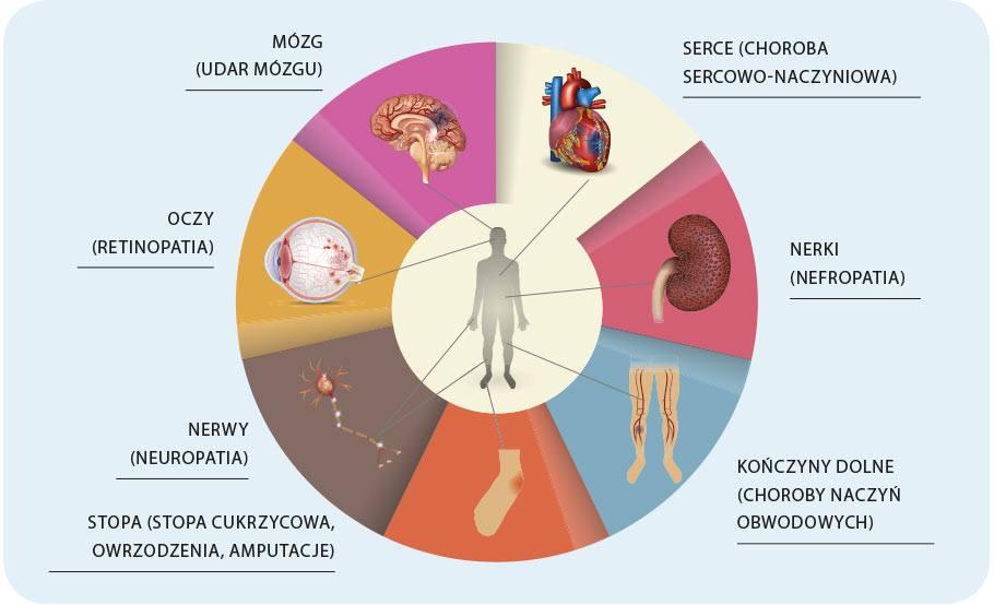 powiklania-cukrzycy
