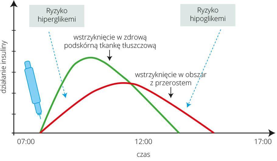 wykres-piatkiewicz