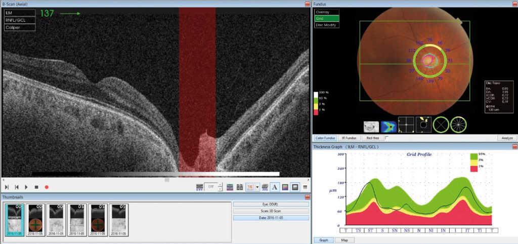 Ryc. 1. Ocena parametrów jaskrowych w prawym oku. Zdjęcia przedstawiają pomiar grubości warstwy włókien nerwowych (RNFL) wokół tarczy nerwu wzrokowego (górne) oraz pomiar kompleksu komórek zwojowych z RNFL lub bez RNFL w plamce (środkowe i dolne) – wartości odniesione są do bazy normatywnej i przedstawione graficznie; przedstawienie wartości w kolorze zielonym informuje o prawidłowych wartościach badanych parametrów.