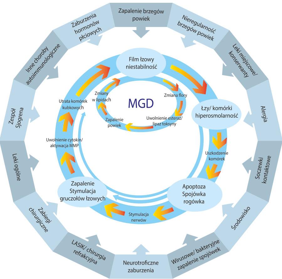 Diagram 1. Proponowany schemat błędnego koła wzespole suchego oka. (Baudouin) Opracowanie na podstawie artykułu Role of hyperosmolarity in the pathogenesis and management of dry eye disease: Proceedings of the OCEAN Group Meting.