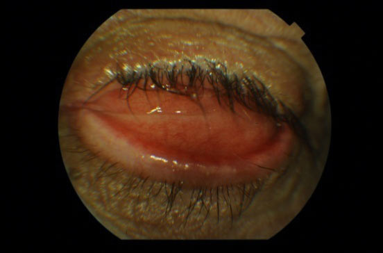 Ryc.15. Wywinięcie powieki dolnej związane z brakiem stosowania konformera.
