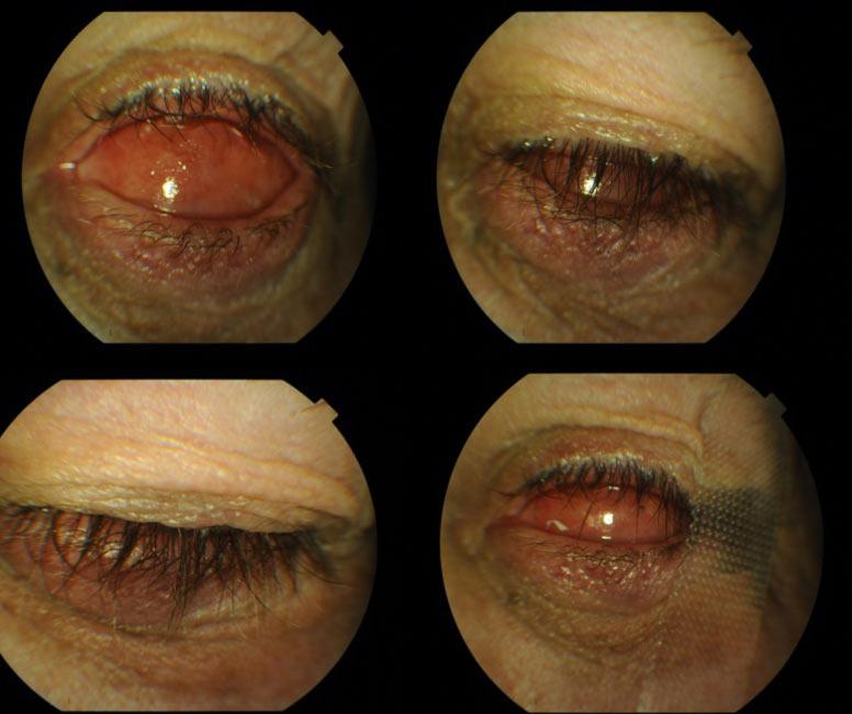 Ryc.16. Stan po prawidłowym założeniu konformera z zabezpieczeniem (plastrem) zwężającym szparę powiekową.