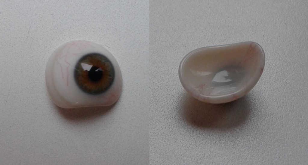 Ryc. 17. Proteza szklana.