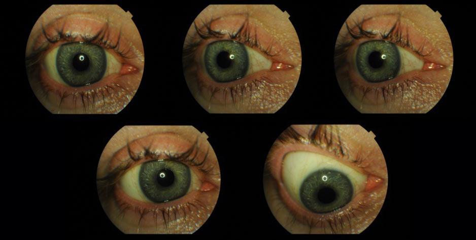 Ryc. 19. Ruchomość protezy oka umiejscowionej w oczodole z implantem oczodołowym.