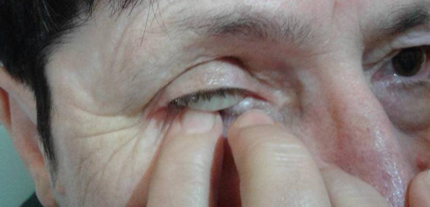Ryc. 20. Ręczny sposób wyjmowania protezy oka.
