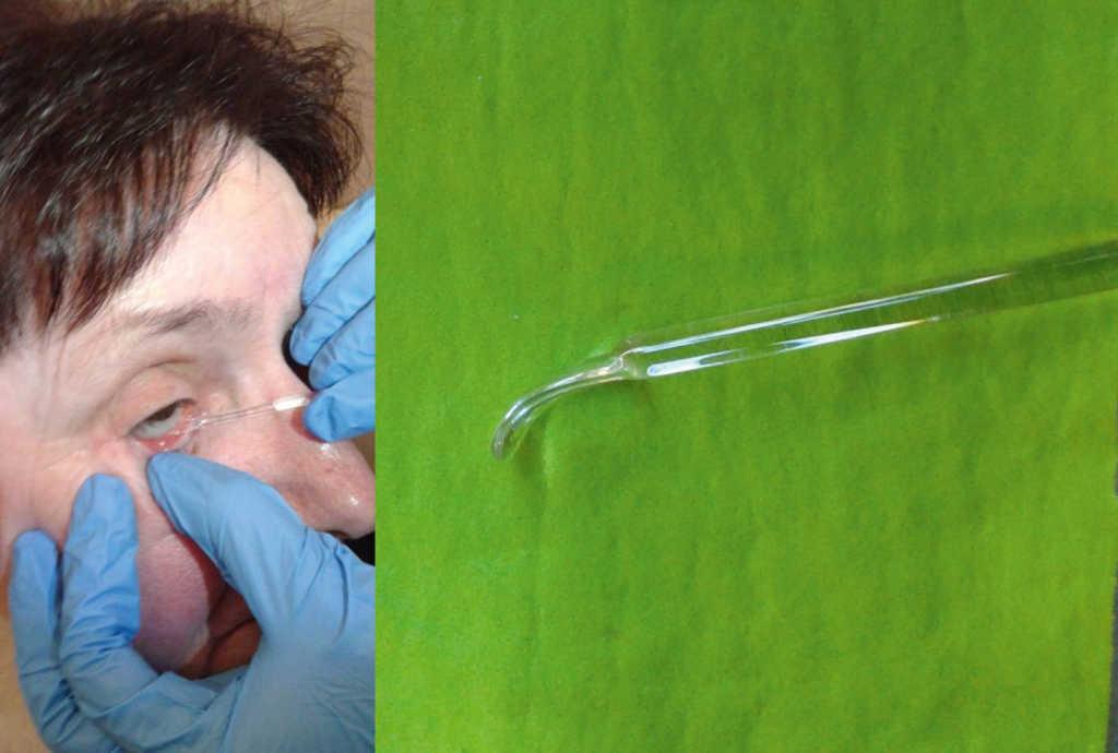Ryc. 21. Usuwanie protezy oka za pomocą szklanej szpatułki.