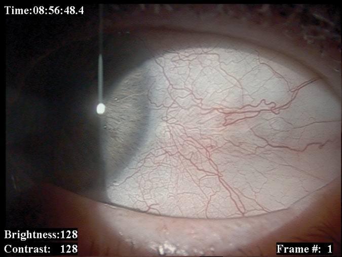 Ryc. 2. Czerniak spojówki gałkowej przed i po leczeniu.