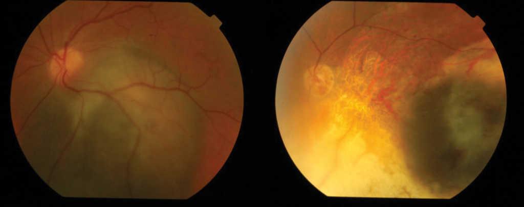 Ryc. 6. Czerniak naczyniówki przed i po leczeniu brachyterapią Ru-106.