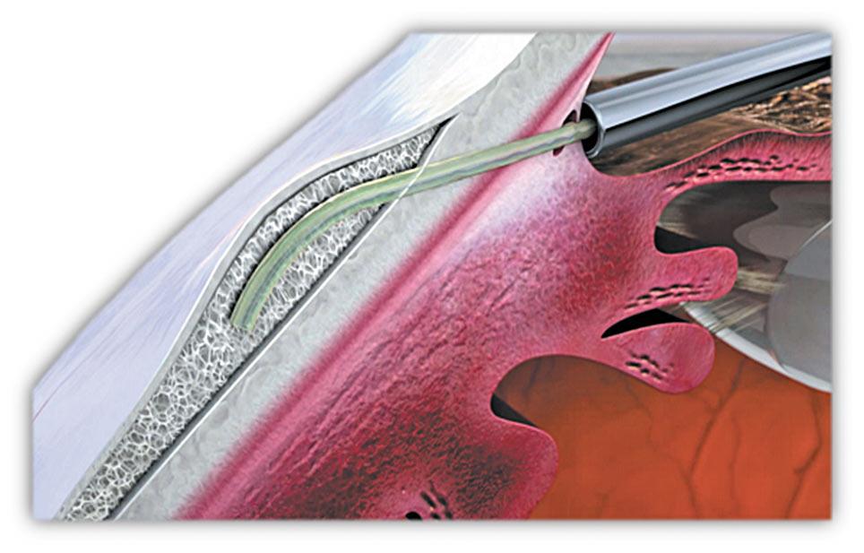 Ryc. 2 Implant wprowadzony pod spojówkę