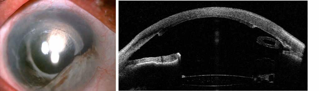 Fot.2. Oko po DSAEK z powodu keratopatii pęcherzowej, z częściową aniridią, obecnością zastawki Ahmeda oraz pseudofakią, a) widok z lampy szsczelinowej, b) przekrój horyzontalny w badaniu AS-OCT