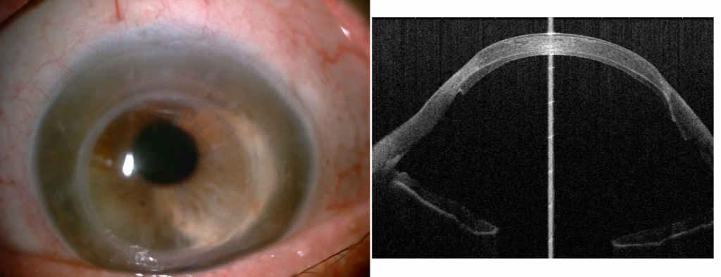 Fot. 3. Oko kilkanaście lat po przeszczepieniu drążącym zpowodu stożka rogówki i4 miesiące po DSAEK zpowodu dekompensacji pierwszego przeszczepu: a) widok wlampie szczelinowej; b) obraz wbadaniu AS-OCT