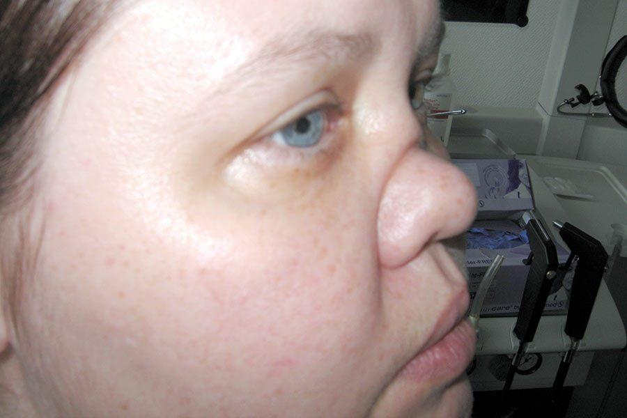 Ryc. 1. Samoistnie zniszczenie kości nosa wZiarniniakowatości Wegenera