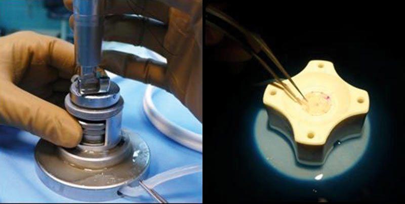Ryc. 5. Preparowanie płatka do przeszczepu tylnego – wycięcie automatycznym mikrokeratomem ina bloczku trepanem ręcznym