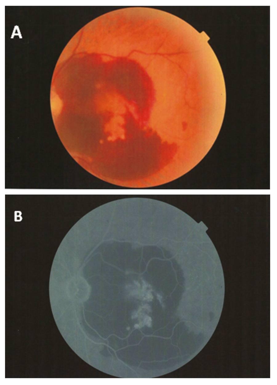 Rycina 3. Dominujący wylew krwi – kolorowe zdjęcie (A), angiografia fluoresceinowa (B).