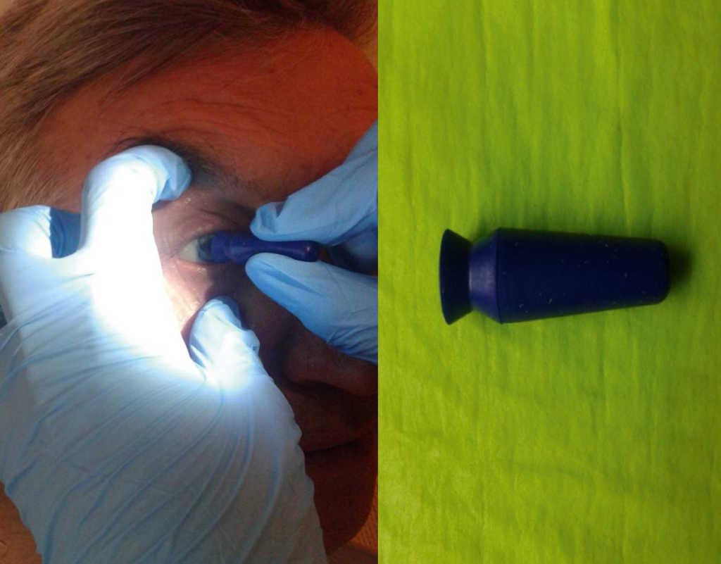 Ryc. 22. Usuwanie protezy oka za pomocą przyssawki.